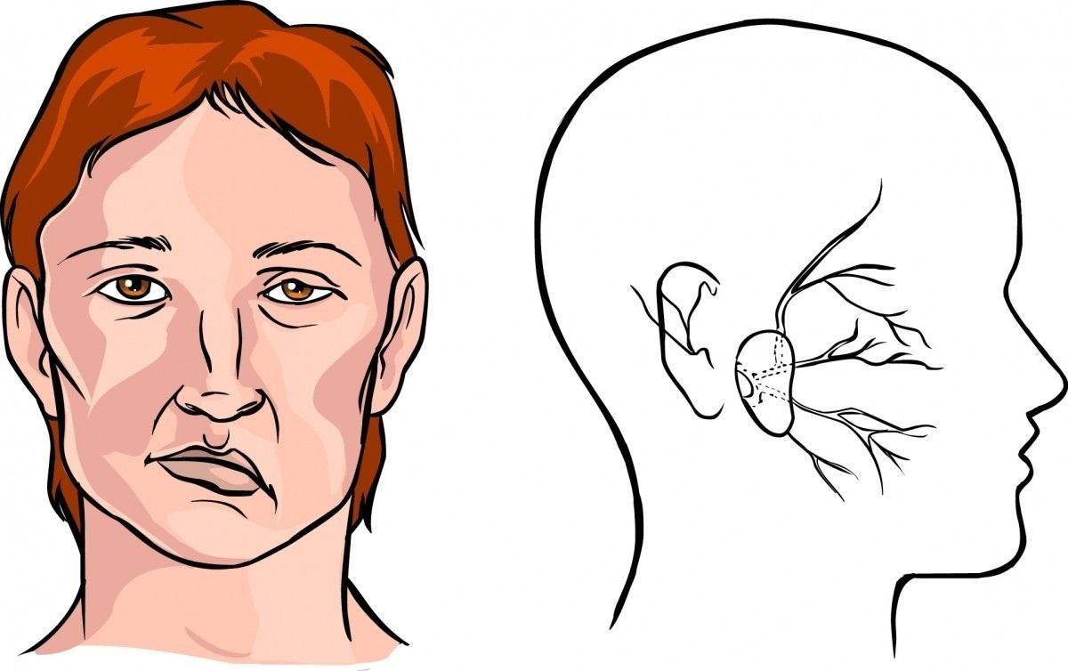 Інсульт: симптоми, причини, лікування